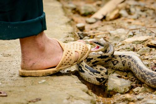 snake bittes